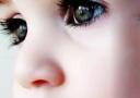 孩子总是泪眼汪汪不是萌出血 当心是泪囊炎