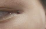 """可怕!男童眼角多颗""""黑痣"""",竟然是蜱虫!"""