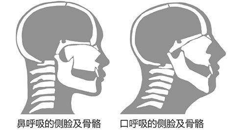 而用嘴巴呼吸时,舌头会后坠下沉,使口腔的肌肉不平衡,长此以往就会图片