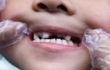 因为妈妈的粗心,十岁男孩戴上了假牙
