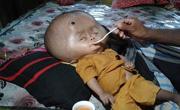 孟加拉两岁男孩患脑积水