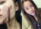 女孩被室友男友砍伤