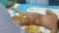 心疼!女童在幼儿园掉进开水桶 全身大面积烫伤(图)